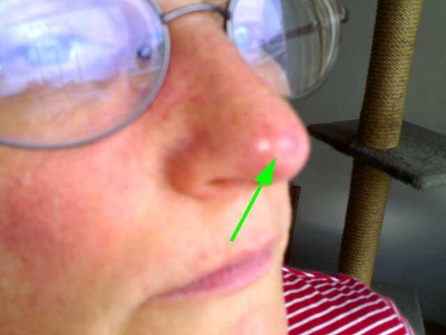 Die dunkle Pigmentation der Haut